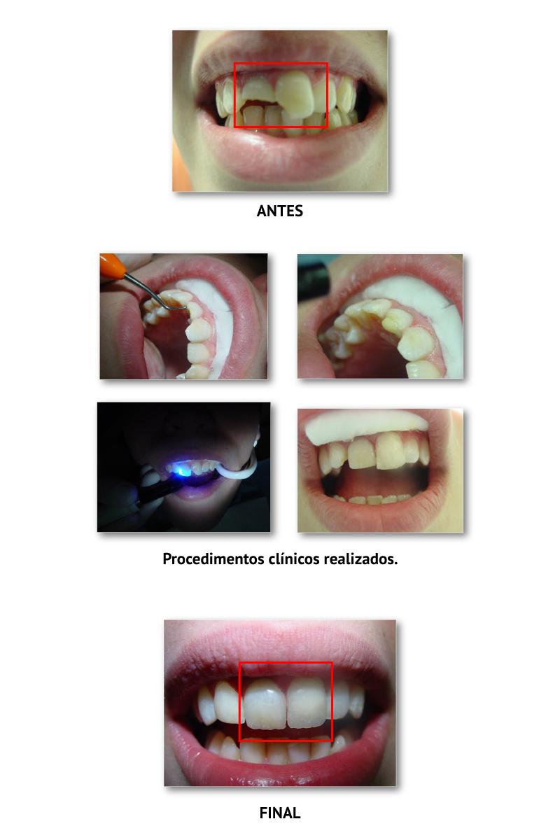 casoclinico_DENTISTERIA