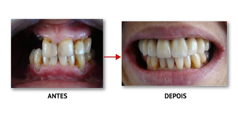 casoclinico_implantologia_2
