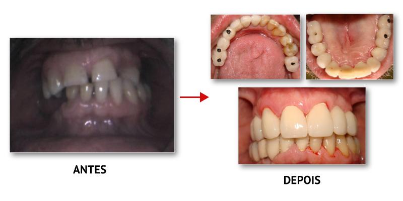 casoclinico_implantologia_3
